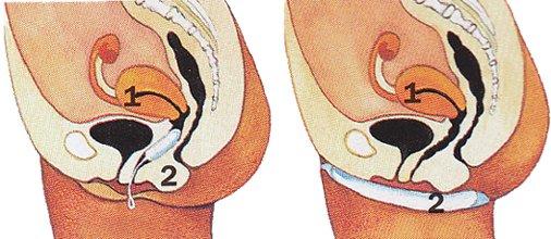 Женский календарь месячных