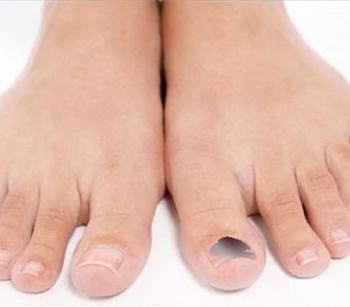 Когда ногти на ногах чернеют это не
