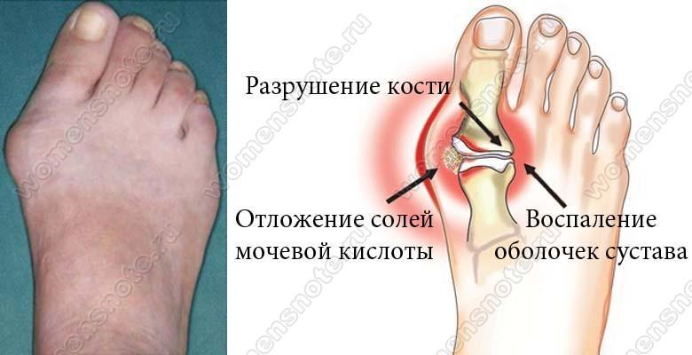 Почему болит косточка на ноге