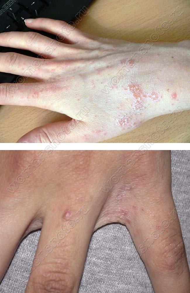 Лечение от растяжение ноги
